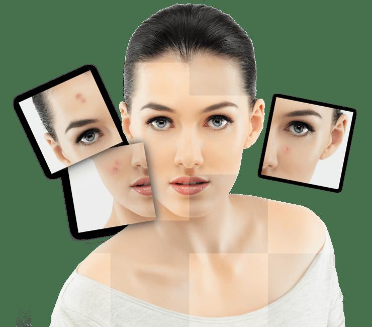 Илон - неотложная помощь в борьбе с акне и другими кожными заболеваниями