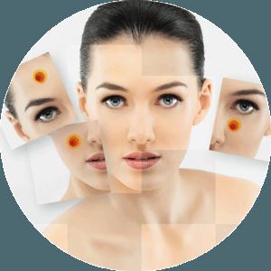 Раздел применения лечения Илон от угревой сыпи и акне