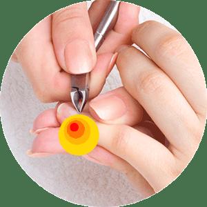 Мазь Илон устраняет воспаления ногтевого ложа (панариция)
